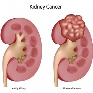 Kidney Cancer