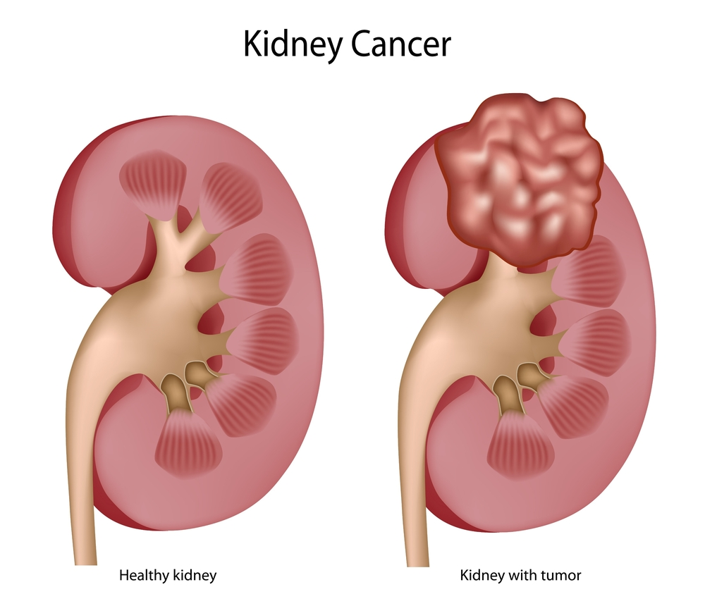 Kidney Cancer Staffordshire Urology Clinic